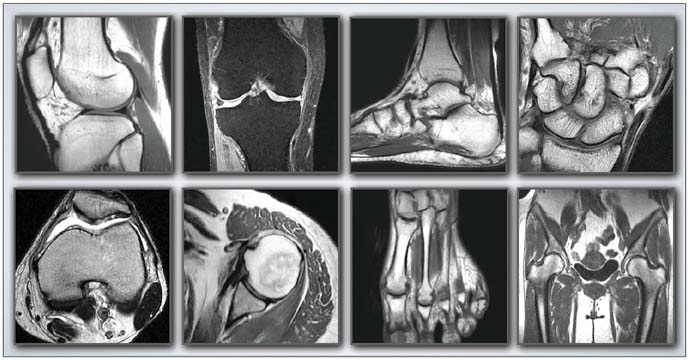 Musculoskeletal Image Gallery